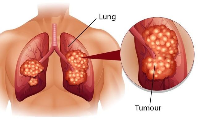 Dấu hiệu điển hình của bệnh ung thư phổi - 1