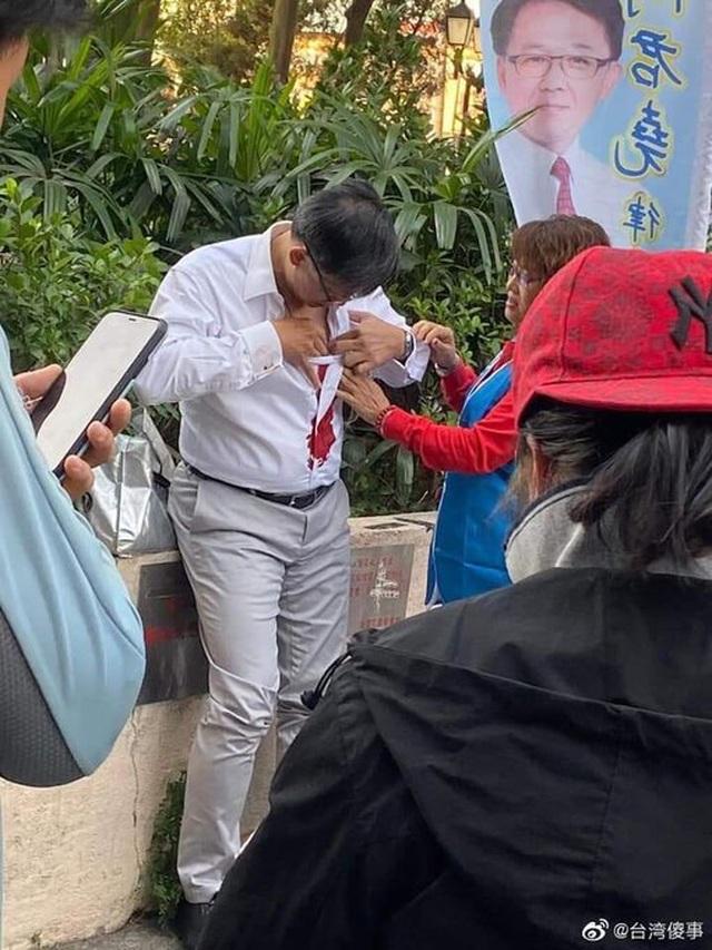 Nghị sĩ Hong Kong bị đâm dao giữa ban ngày - 1