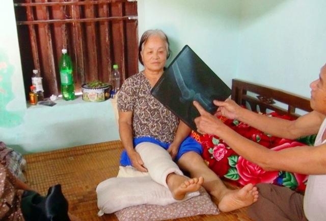 Đàn trâu lạ vào làng đuổi húc 15 người bị thương - 3