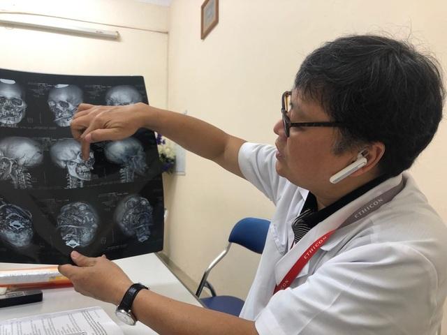 """Hà Nội: Bệnh nhân ảo giác giật tóc, """"lên gối"""" đánh nữ điều dưỡng mang bầu 4 tháng - 1"""