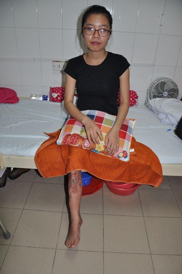 Cô gái trẻ bị ô tô nghiến đứt chân đã trở thành nữ bác sĩ - 3