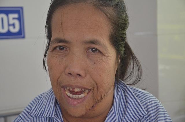Người đàn bà có hàm răng kì dị lần đầu ngoái cổ sau nửa thế kỉ: Em sợ mẹ không nhận ra - 4