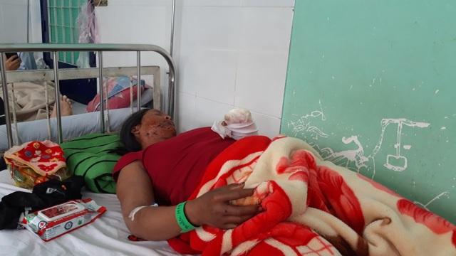 Vụ nổ đầu đạn pháo 9 người bị thương: Bé gái 22 tháng tuổi đang nguy kịch - 1
