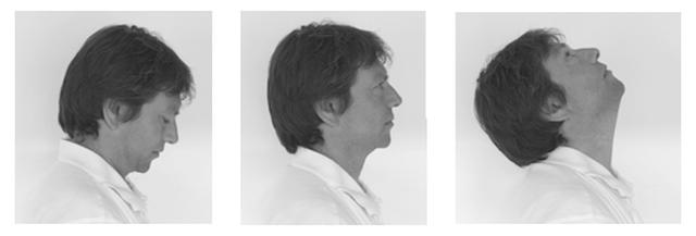 Bài tập phục hồi chức năng sau xạ trị ung thư đầu cổ - 3