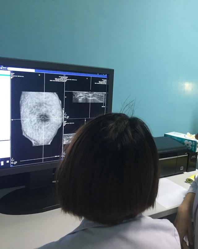 Những quan điểm sai lầm trong tầm soát bệnh ung bướu - 1