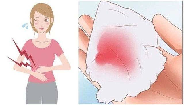 Những điều cần biết về u nang buồng trứng và giải pháp cải thiện bệnh nhờ Nga Phụ Khang - 2