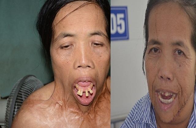 Người đàn bà có hàm răng kì dị lần đầu ngoái cổ sau nửa thế kỉ: Em sợ mẹ không nhận ra - 2