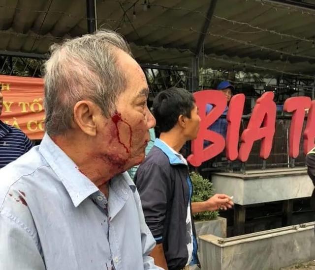 Hà Nội: Điều tra vụ cụ ông 80 tuổi chạy xe ôm bị đánh đến nhập viện - 1