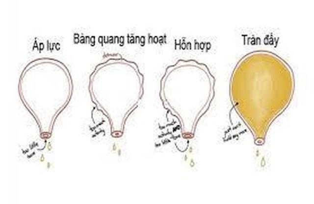 Ích Tiểu Vương - Giải pháp tối ưu giúp cải thiện bàng quang kích thích - 1