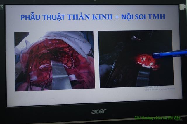 """BV Chợ Rẫy: Phương pháp phẫu thuật 3 trong 1 giúp người bệnh thoát """"án tử"""" - 7"""