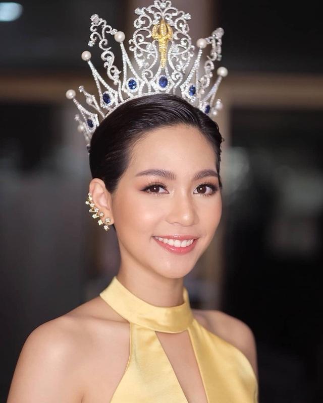 Trước khi sở hữu nhan sắc hoàn mỹ, tân hoa hậu quốc tế từng phải niềng răng - 18
