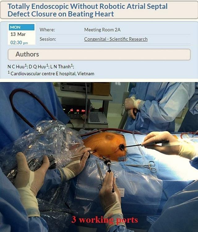Bước tiến ngoạn mục trong mổ tim: Từ mổ 'phanh ngực' đến đường mổ chỉ 1,5 cm - 4