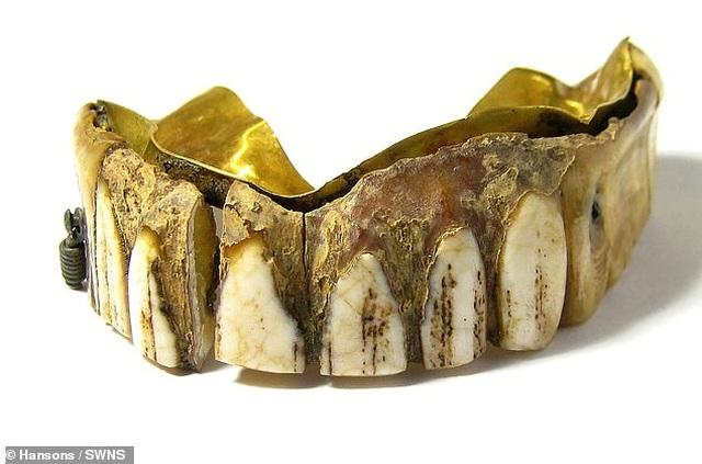 Tìm thấy bộ răng giả bằng vàng 200 năm tuổi - 1