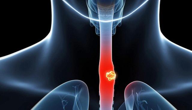 Thói quen làm tăng 10 lần nguy cơ mắc ung thư thực quản nhiều quý ông vẫn không từ bỏ - 1