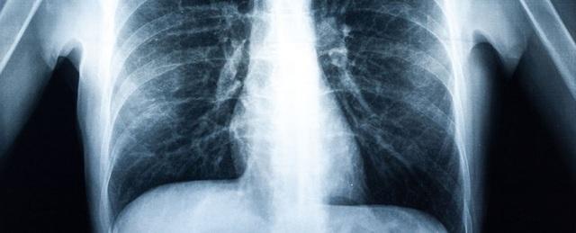 Bệnh nhân đầu tiên trên thế giới phải ghép phổi do hút vape - 1