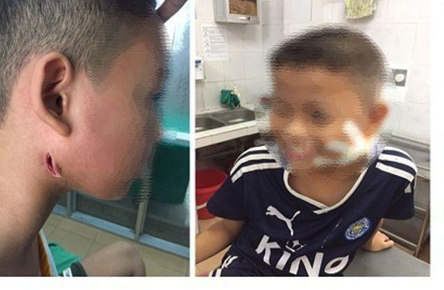 Hà Nội: Trong nửa tháng, 2 anh em ruột tử vong do nhiễm khuẩn Whitmore - 1