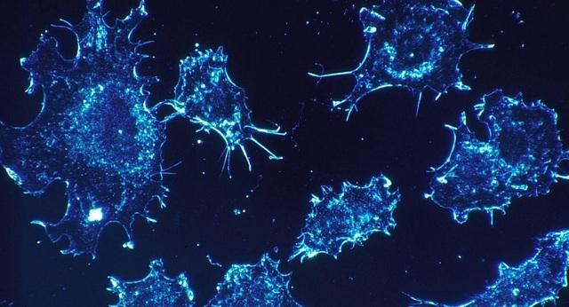 Phát hiện nguyên nhân chính hình thành ung thư - 1