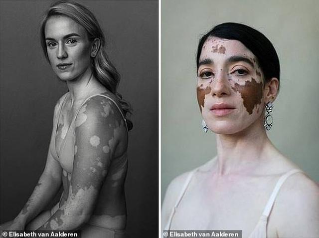 """Bộ ảnh khắc họa """"vẻ đẹp độc đáo"""" của những phụ nữ mắc bệnh bạch biến - 3"""