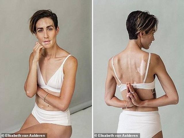 """Bộ ảnh khắc họa """"vẻ đẹp độc đáo"""" của những phụ nữ mắc bệnh bạch biến - 11"""