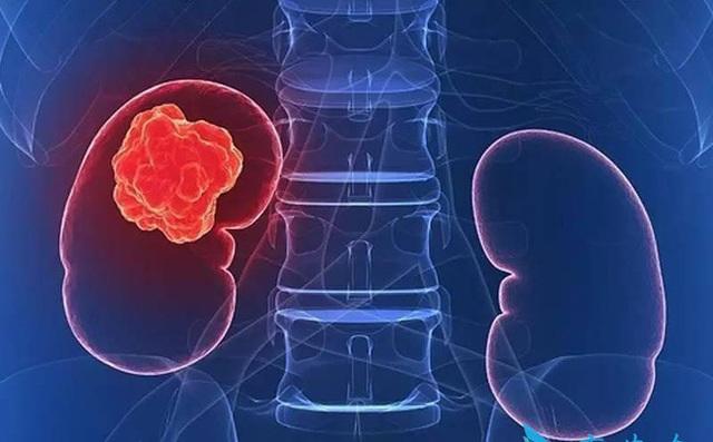 13 dấu hiệu trên cơ thể cảnh báo ung thư thận ngầm phát triển mạnh mẽ - 1