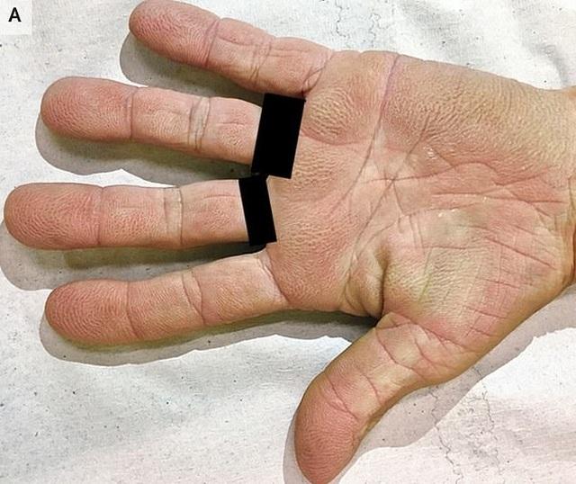 Phát hiện ung thư phổi từ dấu hiệu lạ ở lòng bàn tay - 1