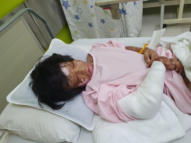 """""""Phù thủy"""" phẫu thuật, cứu chân tay co rút gân cho trẻ em nghèo - 2"""