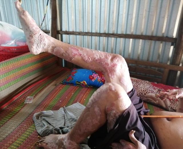 Sởn da gà cảnh người đàn ông vạm vỡ bị bệnh vảy nến quật ngã có bộ da như da cá sấu - 3