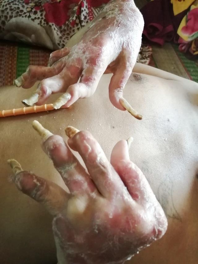 Sởn da gà cảnh người đàn ông vạm vỡ bị bệnh vảy nến quật ngã có bộ da như da cá sấu - 1