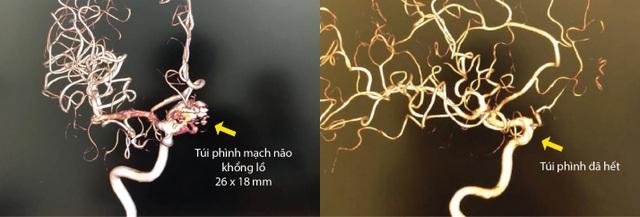 Loại bỏ hoàn toàn túi phình động mạch não lớn bằng phương pháp stent chuyển dòng không mổ - 2