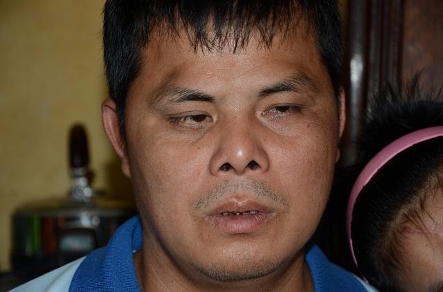 Người cha mù hát rong mơ có tiền ghép sọ cho con gái sau vụ va chạm với tàu hoả - 5