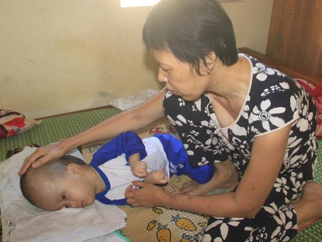 Xót xa cảnh vợ mù lòa ôm con bị não úng thủy, nằm liệt giường suốt nhiều năm! - 7