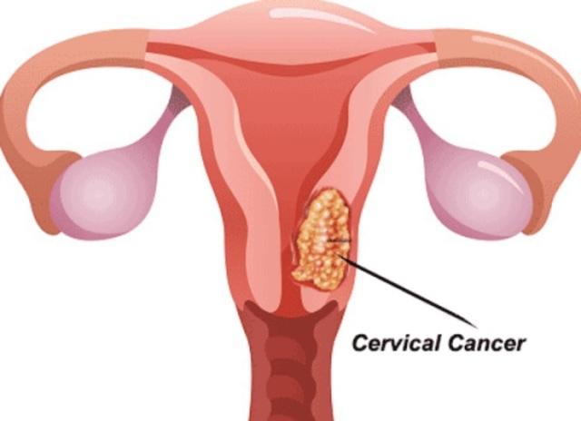 Dấu hiệu ung thư tử cung khi bệnh tiến triển nặng - 2
