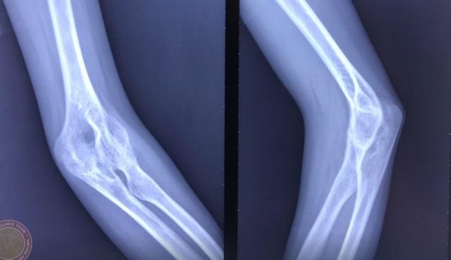 Người phụ nữ 38 tuổi bất lực 10 năm không thể tự chải tóc vì khớp xương biến dạng - 2