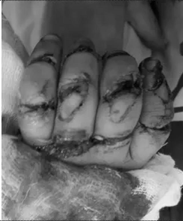 Bệnh nhi 23 tháng tuổi suýt mất 5 ngón tay vì máy rửa xe - 1
