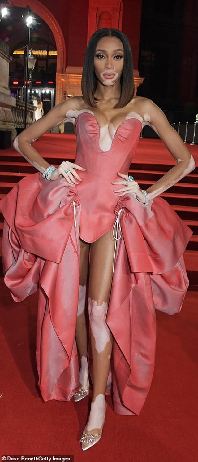 Siêu mẫu bạch biến khoe ngực căng đầy tại lễ trao giải thời trang Anh quốc - 2