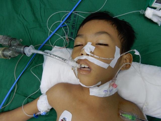 Bác sĩ kêu gọi mạnh thường quân chung tay cứu cậu bé 8 tuổi tính mạng đang nguy kịch - 3
