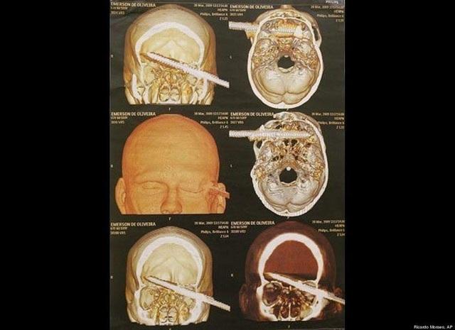 Khó tin những tai nạn dị vật đâm xuyên não vẫn sống sót - 2