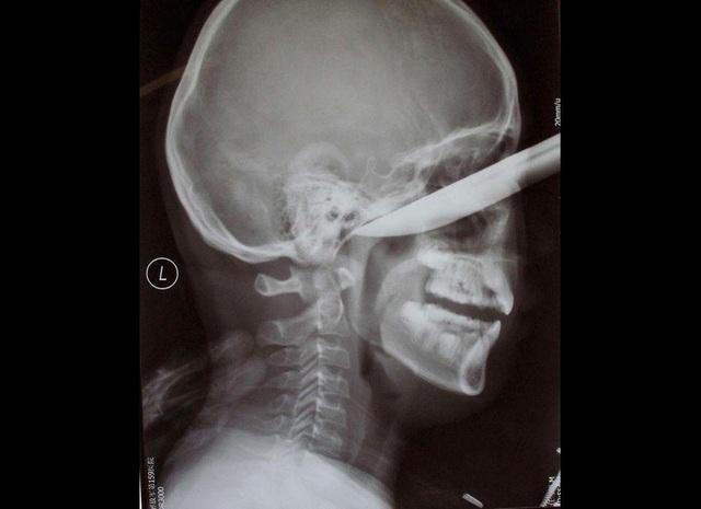 Khó tin những tai nạn dị vật đâm xuyên não vẫn sống sót - 4
