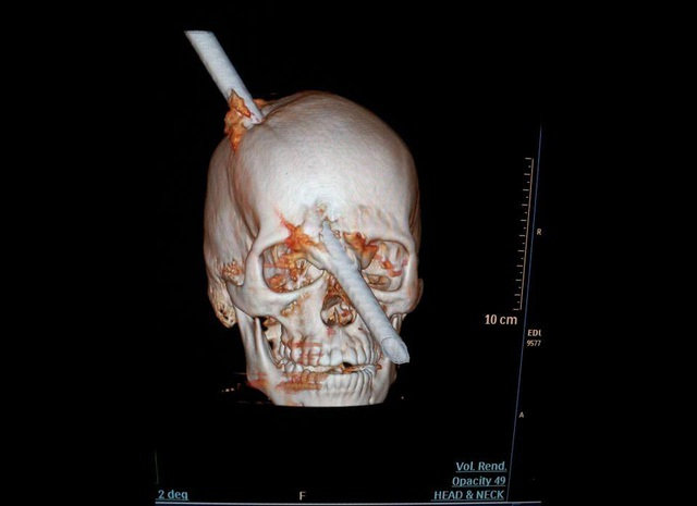Khó tin những tai nạn dị vật đâm xuyên não vẫn sống sót - 6