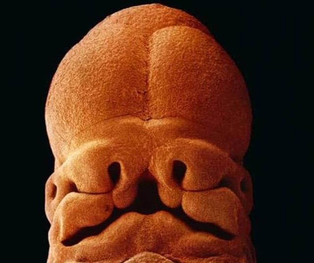 Những bức ảnh đáng kinh ngạc về sự phát triển của thai nhi trong bụng mẹ - 10