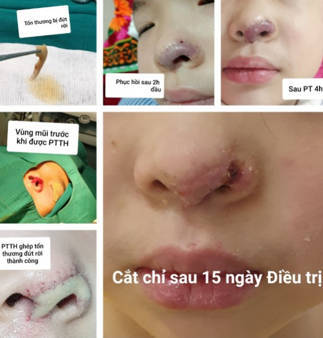 Tìm thấy phần mũi bị đứt rời của bé gái 5 tuổi trong thùng rác - 1