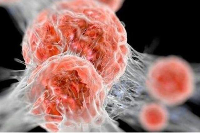 Bác sĩ chỉ ra 5 cách tự phân biệt khối u lành tính và ác tính - 2