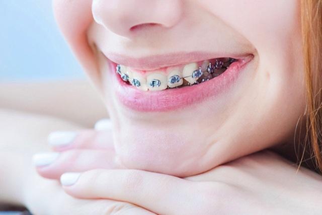 Nên hay không nên cho con niềng răng? - 1