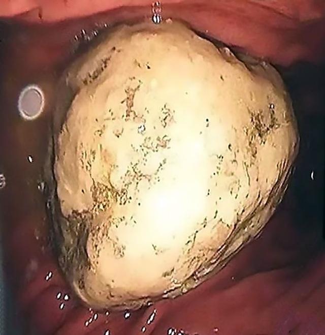 Hậu quả khủng khiếp của người phụ nữ ăn quá nhiều cua và quả hồng - 3