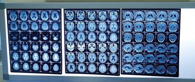 Người mẹ ung thư di căn não, mất trí nhớ vì ngừng điều trị để mang thai - 2