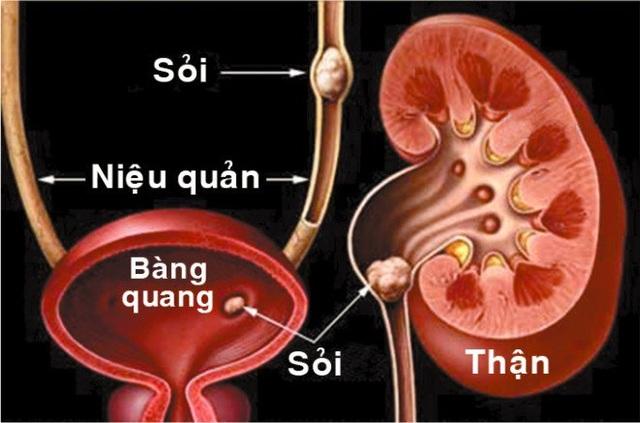 Đả Thạch Vương - Hỗ trợ hiệu quả cho người mắc sỏi tiết niệu, sỏi mật - 1