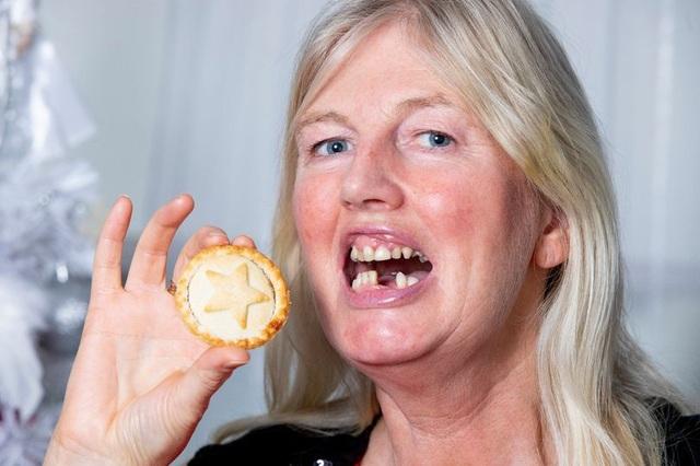 Ăn một chiếc bánh, nuốt mất luôn 2 răng giả - 1