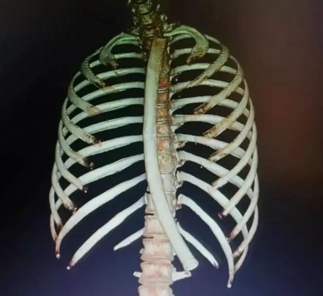 Mắc kẹt ống nhựa dài 30cm, dày 1,9cm trong dạ dày, người phụ nữ bối rối đến viện - 2