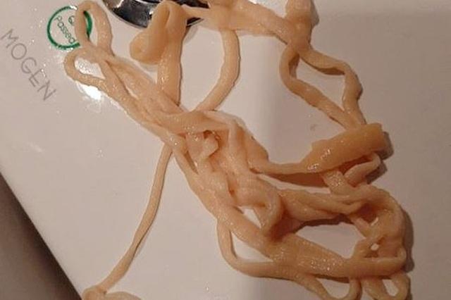 Tự lôi con sán dài gần 10m ra khỏi người khi đi vệ sinh - 1