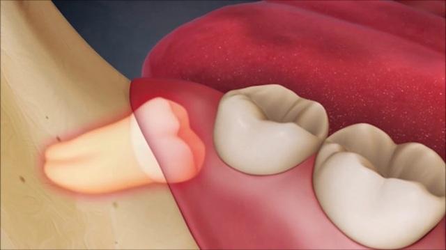 Răng số 8 biến chứng có thể là vấn đề của … ung thư - 1